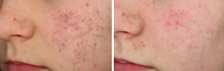 Laser-Treatments-2