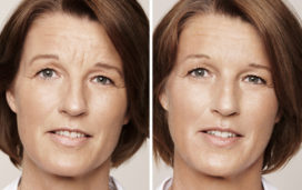 Anti-Wrinkle Injections used to treat frown lines and forehead lines