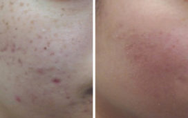 Dermapen (Skin Needling) used to treat active acne & acne scarring