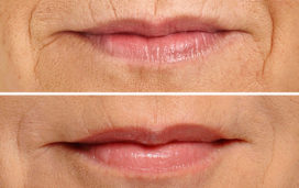Lip Augmentation for Lip Lines (Smoker's Lines)