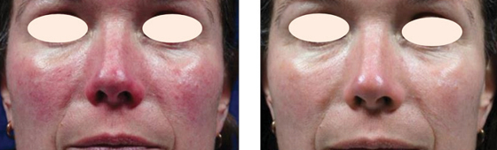Laser Treatment for Rosacea with The Cutera Excel V